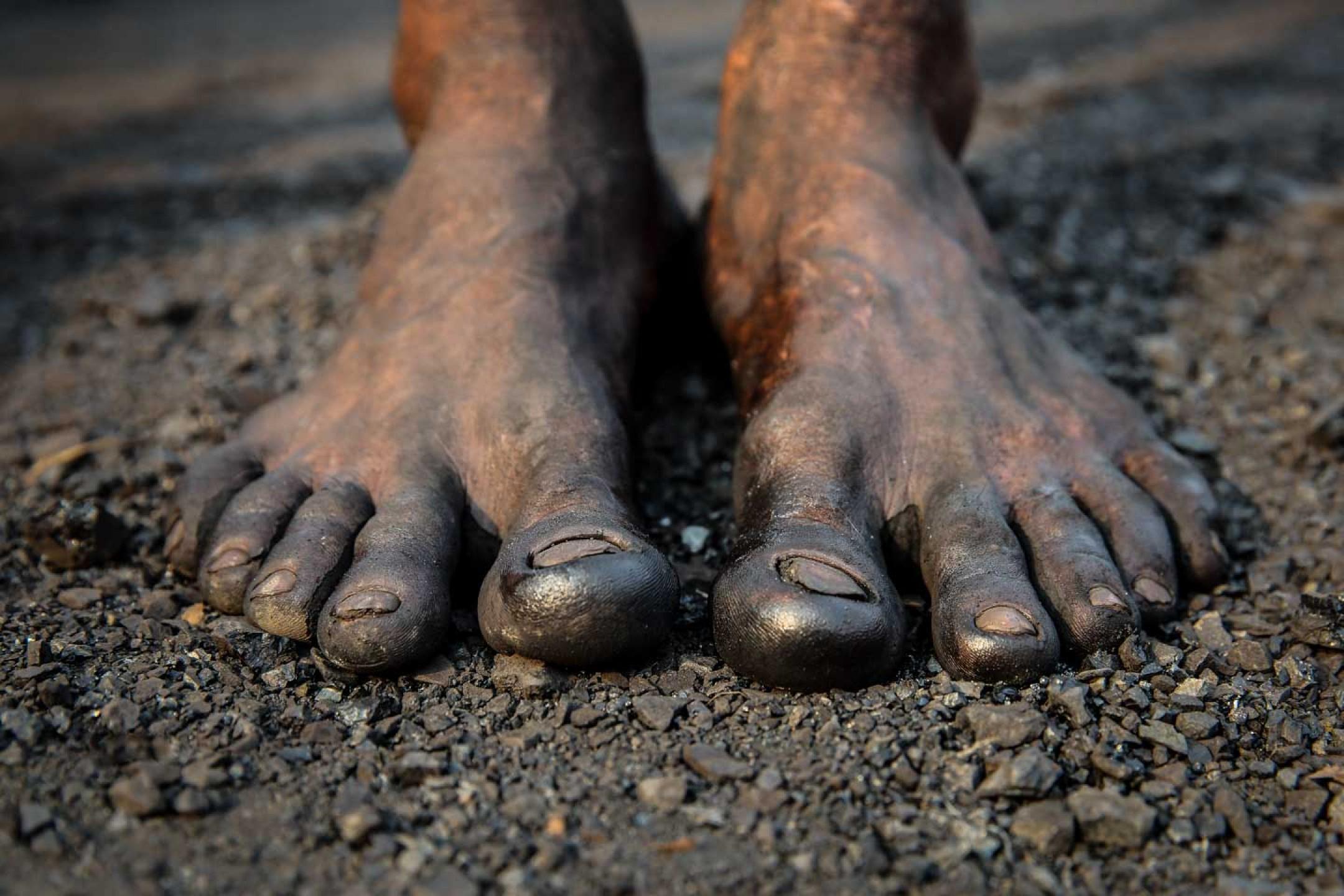 Feet tells stories.